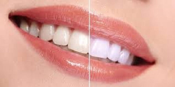 Compare Teeth Whitening