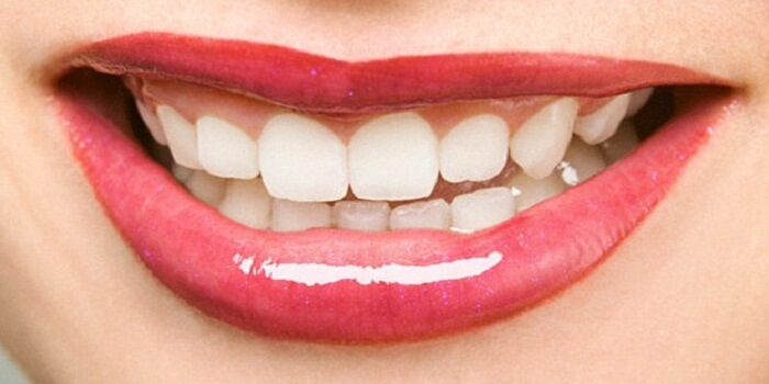 Your 5 Tips to A Healthy and Brighter Teeth