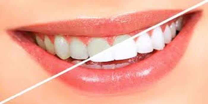 How Teeth Bleaching Differs From Teeth Whitening