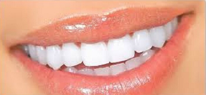How To Make Teeth Whiter Naturally