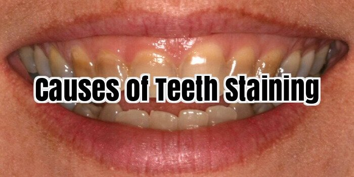 Causes of Teeth Staining